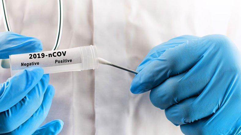 Doç. Dr. Ümit Savaşçı: Koronavirüs Temaslıları, PCR Testini En Erken 3 Gün Sonra Yaptırmalı